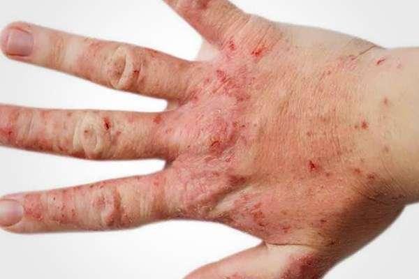 Дерматит: заразен или нет для окружающих, передается ли от человека к человеку