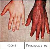 Гемохромотоз: что это за болезнь, наследственный характер заболевания, симптомы у мужчин и женщин, диагностика, анализы, лечение, необходимость диеты