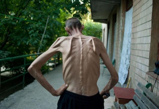 Микобактерии туберкулеза как причина развития заболевания