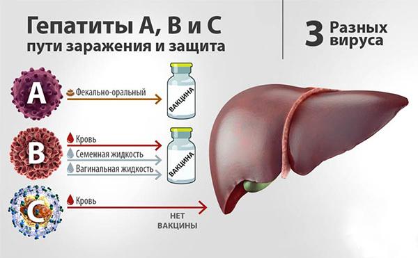 Воспаление печени: симптомы у женщин и мужчин, лечение в домашних условиях, диета, инфекции желчного пузыря, признаки, как лечить, антибиотики, препараты