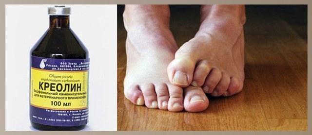 Креолин: инструкция по применению для людей при грибке, отзывы врачей и пациентов