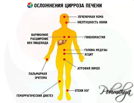 Цирроз печени у мужчин: причины, симптомы и признаки, как проявляется у алкоголиков, прогноз, сколько живут с этой болезнью, последняя стадия, как лечить
