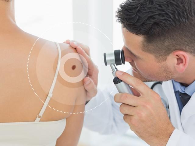 Раковые родинки: симптомы, причины перерождения, как отличить злокачественный невус