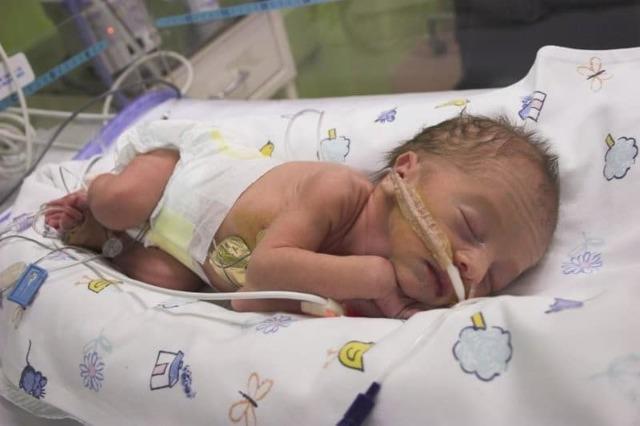 Пневмония у новорожденного после кесарева сечения: что делать