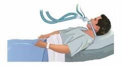 Лапароскопия желчного пузыря: послеоперационный период, осложнения
