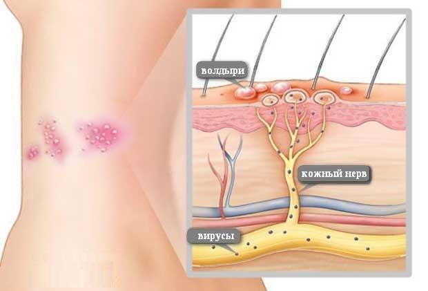 Лечение опоясывающего герпеса на теле: эффективные препараты и народные средства