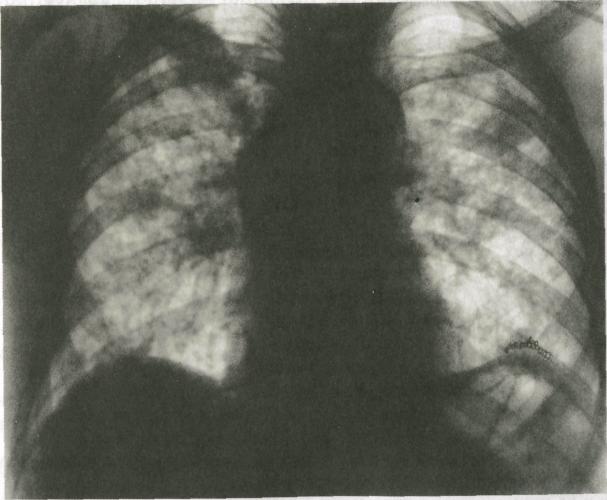 Пневмонит - Гиперсенситивный, Аллергический, Лучевой