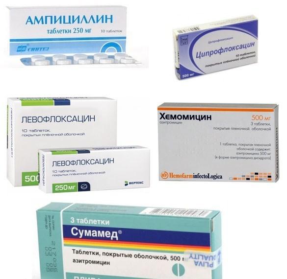 Какие антибиотики пить при бронхите: обзор препаратов