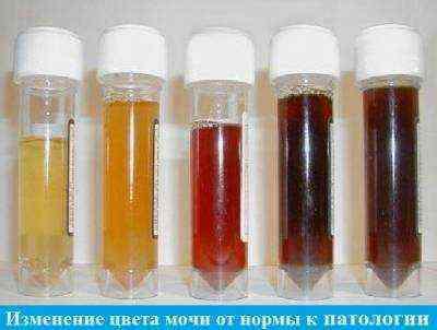 Хронический гепатит В: с дельта-агентом и без него, симптомы, обострения, сколько с ним живут, лечится ли полностью, препараты с лучшими результатами