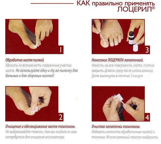 Лоцерил: цена, инструкция по применению, противопоказания, аналоги лака от грибка ногтей