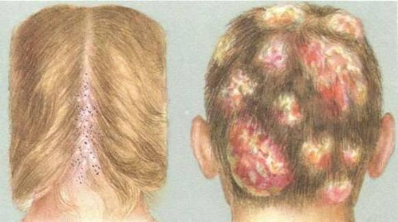 Как передается стригущий лишай от человека к человеку, заразно ли заболевание
