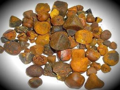 Камни в желчном пузыре, лечение, что делать