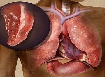 Гнойный бронхит: симптоматика и методы лечения
