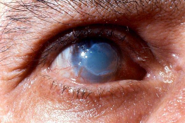 Ожог роговицы глаза ультрафиолетом, термический, химический: первая помощь, лечение