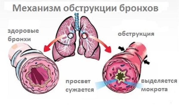 Рассмотрим симптомы и лечение обструктивного бронхита у взрослых