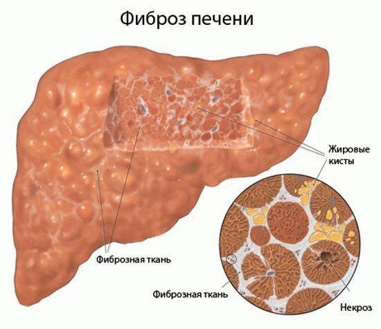 Фиброз печени: что это такое, степени по шкале метавир, сколько живут с таким диагнозом, симптомы, причины, как лечить
