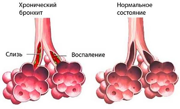 Лечение хронического бронхита: основы терапии