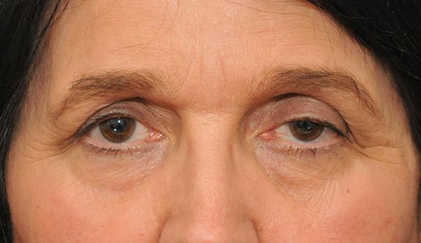 Средство от морщин под глазами: эффективные аптечные и косметические препараты, народные методы