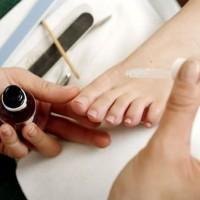 Грибок ногтей на ногах: чем лечить быстро и эффективно, чего боится онихомикоз