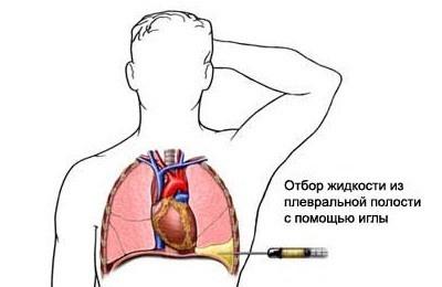 Как проводится пункция легких