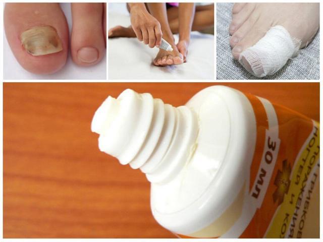 Фундизол при лечении грибка ногтей на ногах: инструкция по применению, цена, отзывы