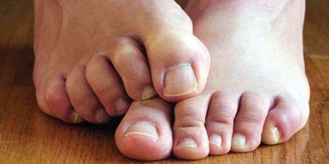 Клотримазол от грибка ногтей: отзывы, инструкция по применению, показания, противопоказания, аналоги