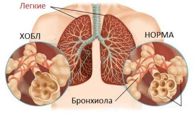 Обструктивная хроническая болезнь легких: как лечить