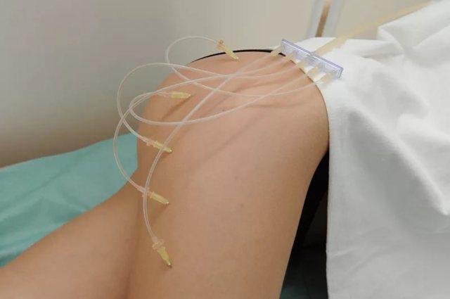 Уколы от целлюлита: лимфодренажные и другие препараты для инъекций против «апельсиновой корки»