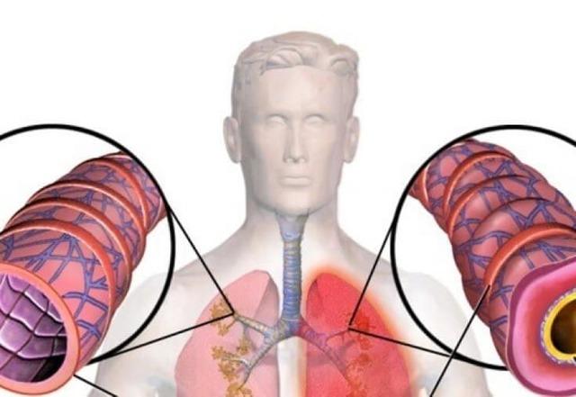 Бронхиальная Пневмония: Симптомы + Диагностика + Лечение