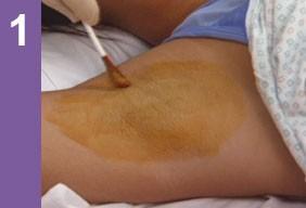 Лечение гипергидроза ботоксом: процедура от потливости подмышек, ладоней и других частей тела