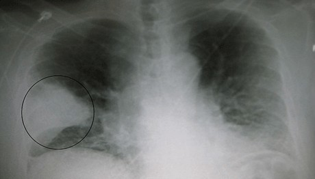 Бактериальная пневмония: причины и симптомы