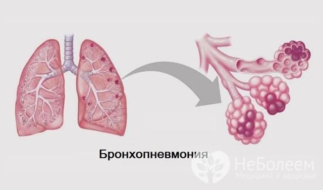 Как проявляется бронхопневмония: характерные симптомы