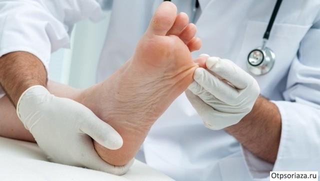 Нити мицелия на ногтях: лечение медицинскими препаратами и народными средствами
