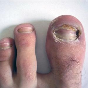 Чем опасен грибок ногтей на ногах для организма, если его не лечить: последствия и осложнения
