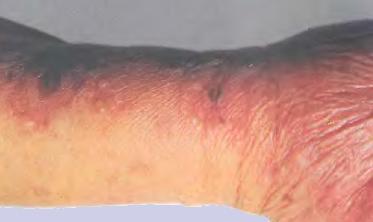 Солнечная эритема: что это такое, фото, причины, симптомы, лечение, профилактика