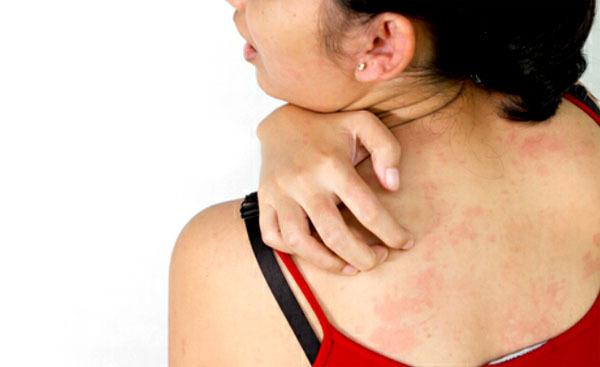Герпес на животе: причины, симптомы, традиционные и народные методы лечения
