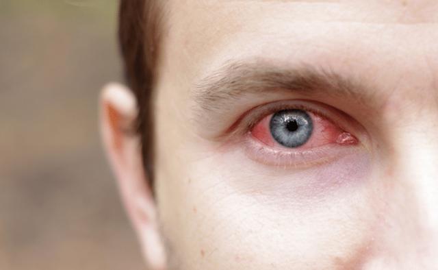Ожог глаз кварцевой лампой: лечение, первая помощь, возможные последствия и осложнения