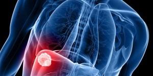 Характерные признаки пневмонии у ребенка