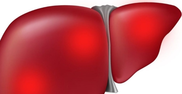 Стеатоз печени: что такое жировая дистрофия, стадии, классификация по МКБ-10, виды, признаки, причины, лечение