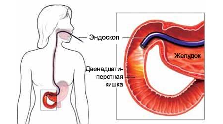Боль в правом боку на уровне талии: локализована спереди или со стороны спины, у женщин и мужчин, тупая и жгучая, отдает в пах