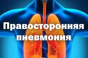 Правосторонняя среднедолевая пневмония: причины и симптомы