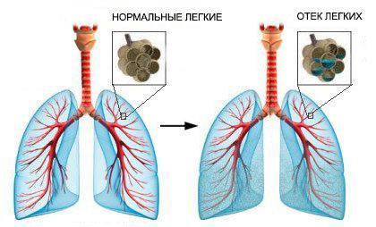 Опасная ли для жизни жидкость в легких и правосторонняя пневмония?