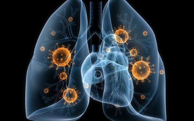 Классификация туберкулеза легких: особенности заболевания