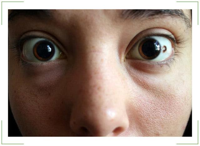 Родинка в глазу: симптомы, опасность и лечение невуса хориоидеи и конъюнктивы