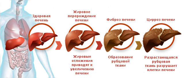 Цирроз печени: что это такое, первые признаки, симптомы, код МКБ, причины, самое эффективное лечение, сколько живут с этим диагнозом, питание, осложнения, прогноз
