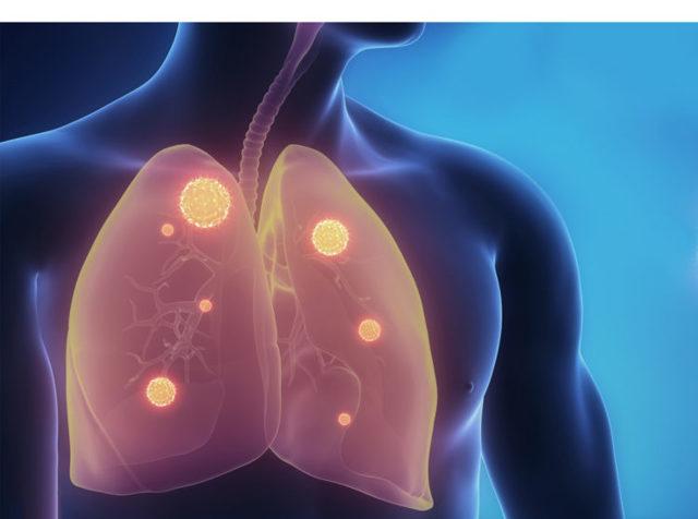 Как развивается фиброма легких