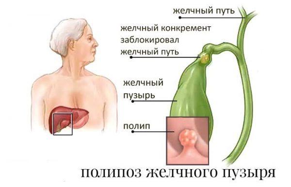 Желчный пузырь с перегибом в теле, деформация