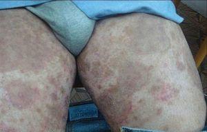 Лечение грибка кожи: мази, кремы, таблетки и народные средства для борьбы с дерматомикозом