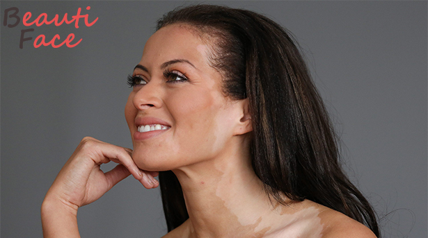 Как замаскировать пигментные пятна на лице, как спрятать витилиго: косметические и народные средства