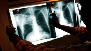 ВИЧ и туберкулез: что нужно знать